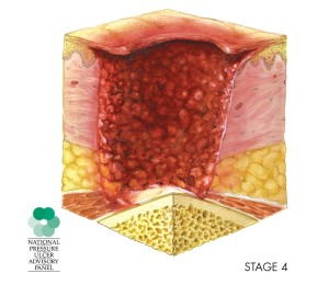 NPUAP Stage 4 Pressure Ulcer, Pressure Sore Articles, Decubitus Ulcer, Now Known as Pressure Injury