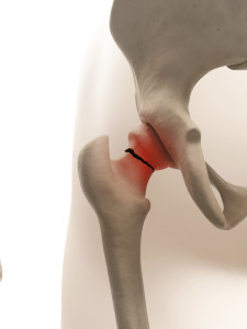 Hip Fracture and Other Fall Related Injuries